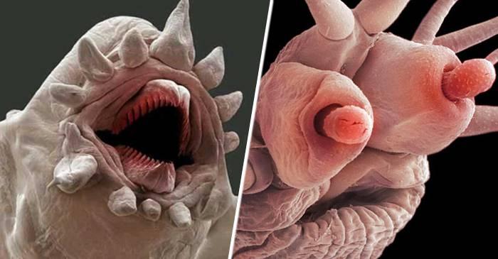 Monștrii noștri Cum arată paraziții umani la microscop featured_comp