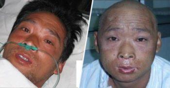 Un experiment sinistru: Iradiat mortal, a fost ținut în agonie 83 de zile
