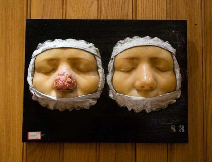 Cele mai ciudate muzee din lume - Muzeul Mutter