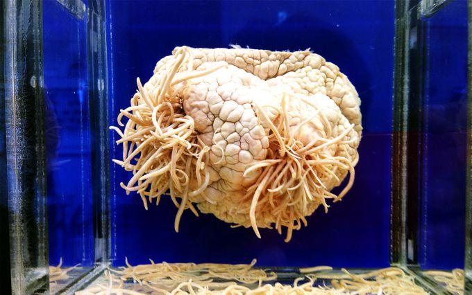 Cele mai ciudate muzee din lume - Muzeul parazitilor