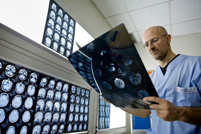 Transplant de cap - Sergio Canavero