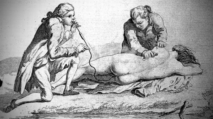 Medicina antica - Clisma