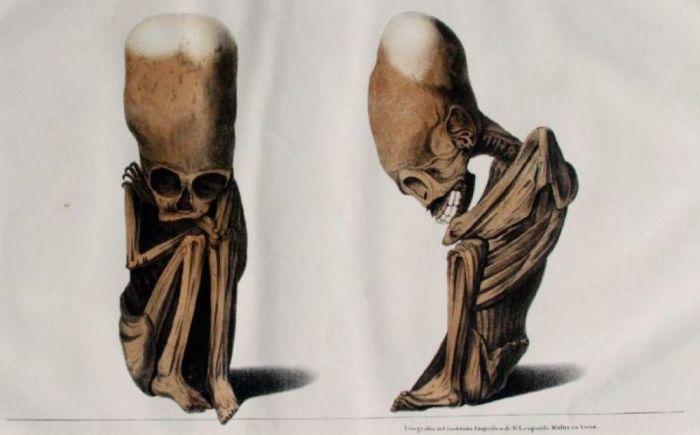 cranii alungite - fetur rivero tschudi