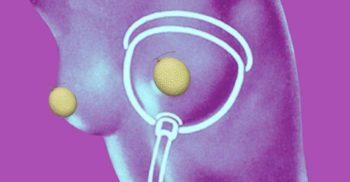 Cum își măreau femeile sânii înainte să existe implanturi mamare_compressed