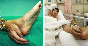 """Doctorii i-au atașat unui bărbat mâna de picior, pentru a o menține """"vie"""" featured_compressed"""