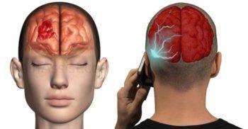 Tehnologia care ne omoară – Legătura dintre telefonul mobil și cancerul la creier
