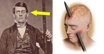 phineas gage featured_compressed
