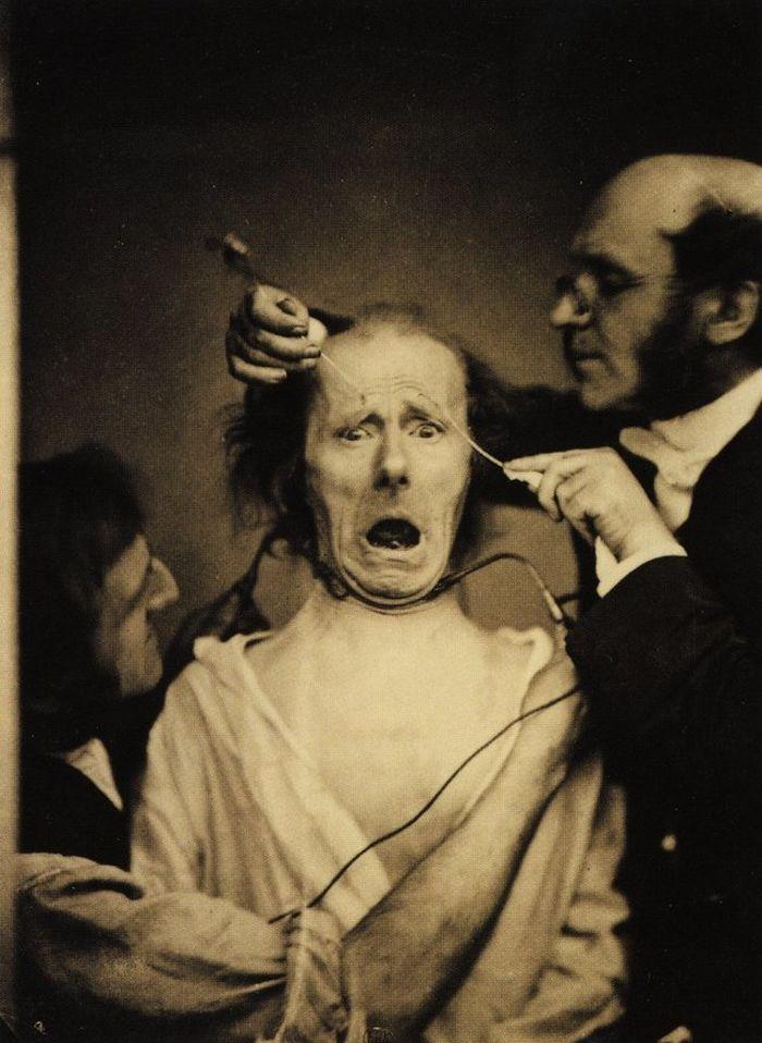 Fotografii sinistre - Neurologul