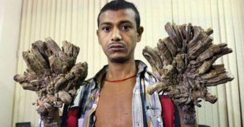 Sindromul omului-copac - Boala ce transformă oamenii în bucăți însuflețite de scoarță de copac featured_comp