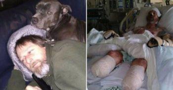 Cazul Greg Manteufel: I-au amputat mâinile și picioarele după ce a fost lins de câine