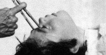 10 tratamente barbare la care erau supuși pacienții cu boli psihice featured_compressed