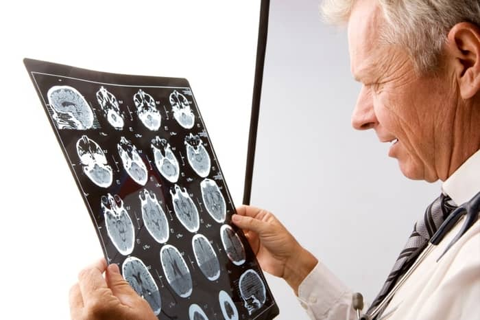 Boala cerebrala 01