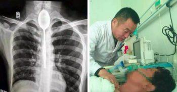 Chinezul care a trăit timp de un an cu o lingură în esofag