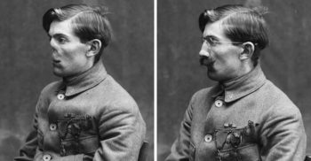 Cum se reconstruiau fețele soldaților mutilați în Primul Război Mondial