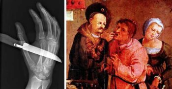 7 descoperiri medicale revoluționare, care au salvat milioane de vieți