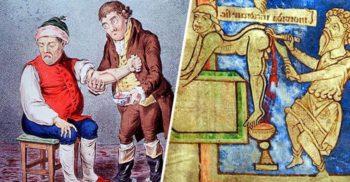 5 practici medicale bizare folosite de-a lungul istoriei