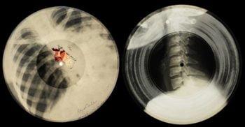 Arhiva oaselor rupte: Cum înregistrau rușii ilegal muzică pe radiografii