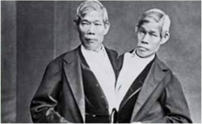 Chang și Eng, adevărații gemeni siamezi