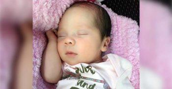 Itzamara Vega: Fetița care s-a născut cu un frate parazit în corpul său