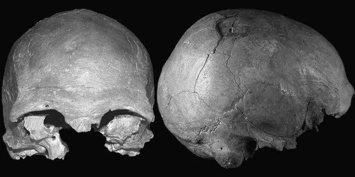Craniul Cioclovina bis