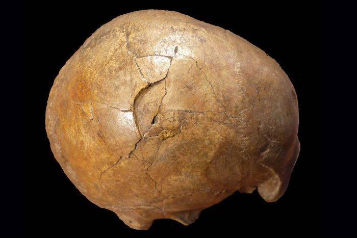 Craniul Cioclovina