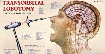 25 de adevăruri înfiorătoare despre lobotomie