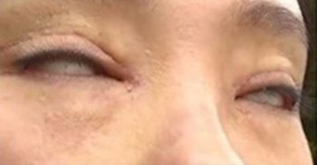 După o operație eșuată, nu-și mai poate închide ochii nici când doarme