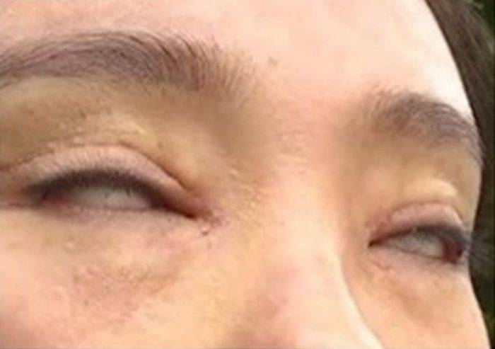 Femeie ochi