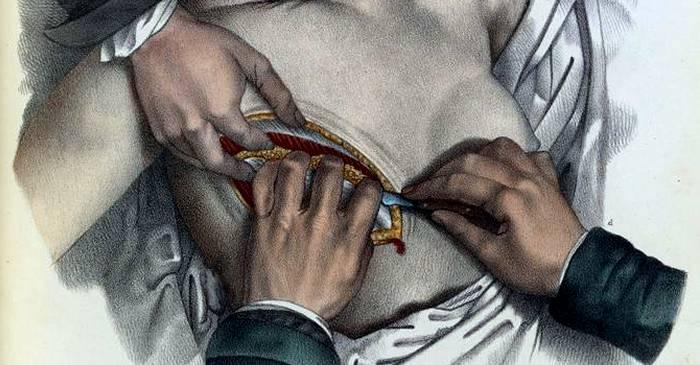 Frances Burney, femeia căreia i-a fost îndepărtat chirurgical un sân fără anestezie featured_compressed