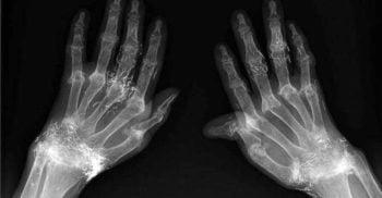 Acupunctura cu fire de aur, o modalitate bizară de a lupta cu durerea