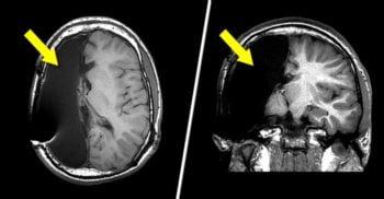 Cum trăiesc oamenii care au doar o jumătate de creier. Un studiu RMN oferă câteva răspunsuri