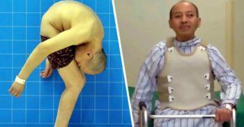 Li Hua, omul care a trăit 28 de ani cu fața lipită de picioare