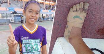 """O elevă din Filipine a câștigat trei curse alergând cu """"încălțări"""" din leucoplast"""