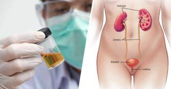 Boala fără nume: Femeia a cărei vezică urinară produce alcool