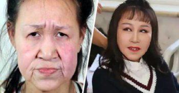 O fată de 15 ani s-a supus unor operații estetice ca să pară mai tânără