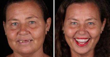 Un dentist din Brazilia le redă zâmbetul oamenilor sărmani