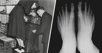 """Aparatul de probat pantofi: Dispozitivul care te """"încălța"""" cu radiații"""