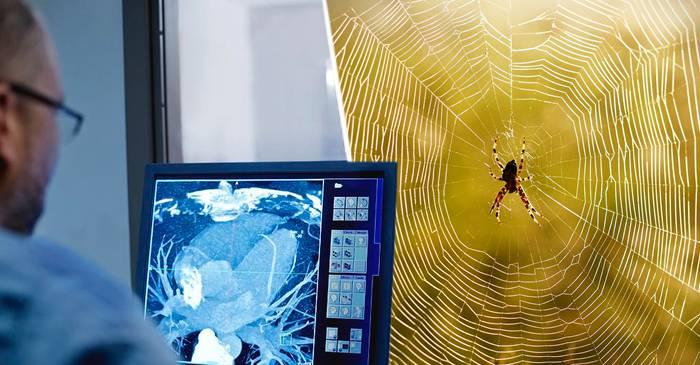 Super-lentilele din pânză de păianjen care permit scanarea corpului uman