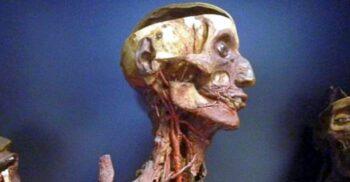 """""""Pietrificatorul"""" Giovan Batista Rini și mumiile conservate în mercur timp de 200 de ani"""