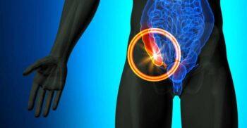 De ce avem apendice? Funcțiile nebănuite ale unui organ considerat inutil