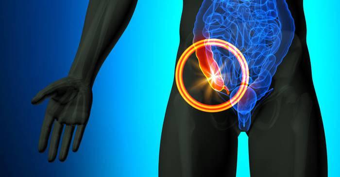 De ce avem apendice Funcțiile nebănuite ale unui organ considerat inutil featured_compressed
