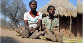 VaDoma, tribul renumit pentru sindromul piciorului de struț