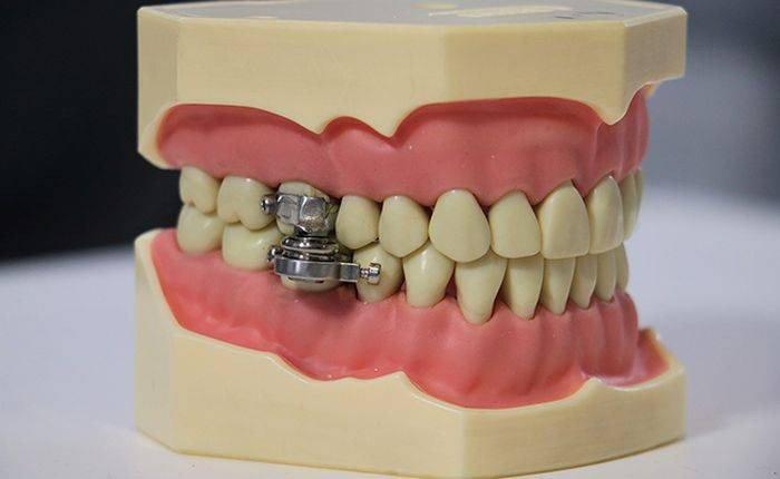 DentalSlim Diet Control