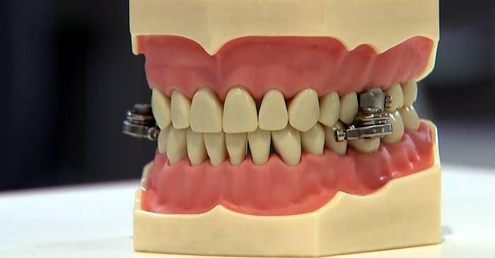 DentalSlim, dispozitivul de slăbit care te împiedică să deschizi gura