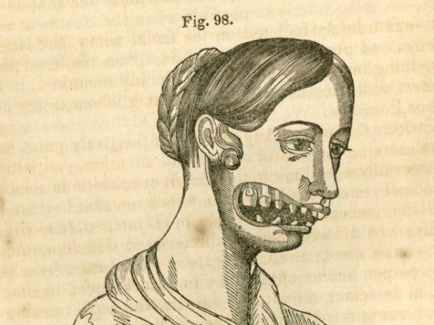 Boli rare - Fosfonecroza