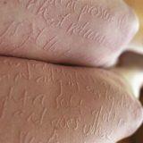 boli rare - Dermatografia