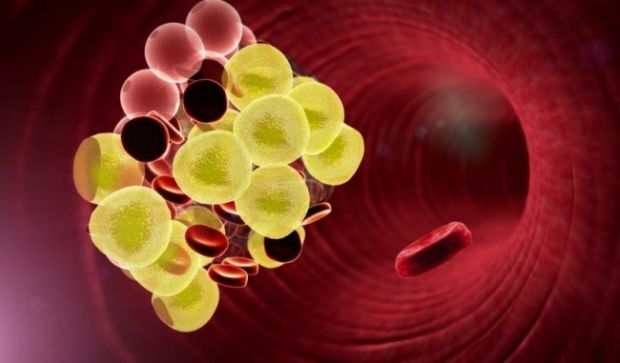 Genetica - Colesterol