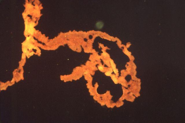 schistosoma-mansoni