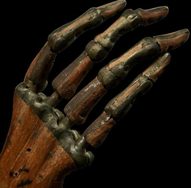 Tratamente medicale - proteza mana