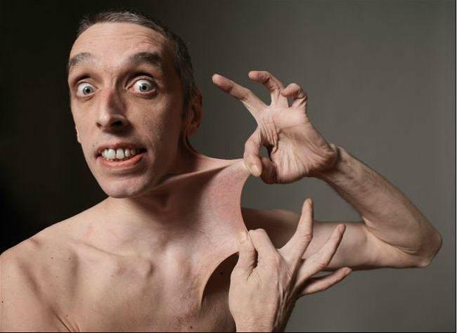boli rare sindromul Ehlers-Danlos